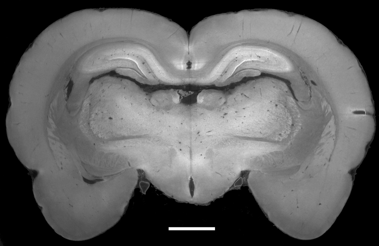 Image of a rat's brain, generated by Marco Stampanoni's research group at the Paul Scherrer Institute using the phase-contrast method. The major anatomical structures are clearly visible. The scale bar (white line) corresponds to a millimetre, so the details visible are on the order of 10 thousandths of a millimetre. (PSI)