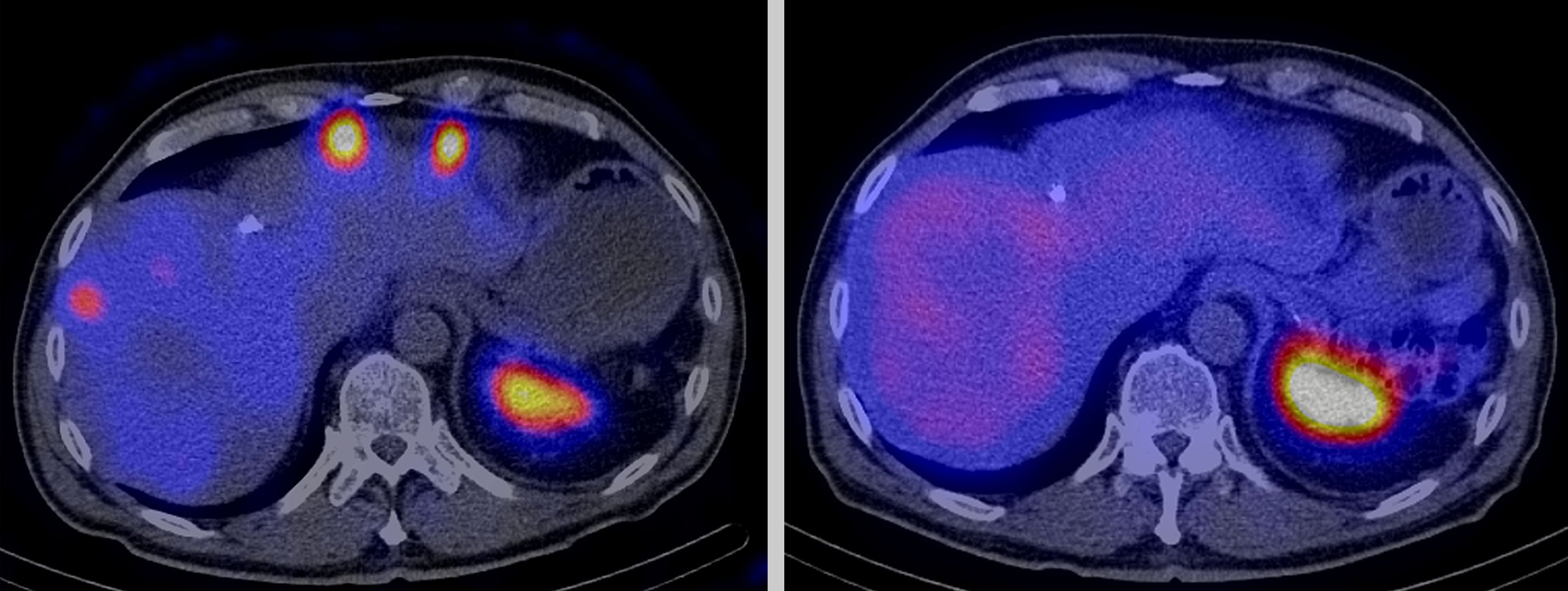 Radioactive drugs also destroy a tumour's scattered metastases. The two photographs show a cross-section of a patient's stomach, whose cancer has formed metastases in the liver. The image on the left was taken directly after the first treatment with a radioactive drug. The white, yellow and red circles at the top depict the metastases. The image on the right was taken after the third treatment five months later: no tumour metastases are visible any longer. The large colour circle at the bottom right in the pictures show the spleen, which also stores this radioactive drug heavily in healthy human beings. However, this splenic storage is harmless for the patients during treatment and has no side-effects. The photographs were taken with a SPECT machine, which measures radiation and depicts the distribution of the radioactive drugs in the body. (Photo: University of Basel)