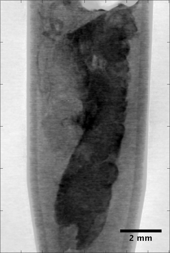 Reconstructed slice of X-ray phase contrast microtomography from a human breast biopsy tissue, suspected of being affected by tumour development.