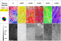 WAXS and radiography images of six samples at different glucose concentration