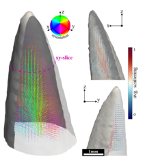 Tensor tomography images of a crocodile tooth.