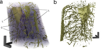 The specially developed nano-CT algorithm uses the multiple X-ray images (indicated on the left) to compute a high-resolution three-dimensional digital image of the sample. Applied in osteology, the process helps to visualize the fine network of channels about 100 nanometers in size, through which cell extensions connect the various bone cells with each other.Copyright: M. Dierolf, P. Thibault, F. Pfeiffer / TU München Right of use: Free use for journalists in connection with the press release from Sept. 2…