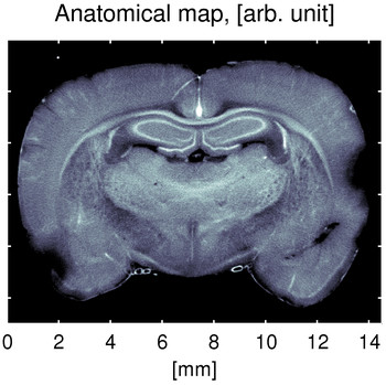 These three images show the same cross-section of the brain of a rat, all obtained using the new process.  a) This image shows the results of scanning Small-Angle X-ray Scattering, which can be used as an anatomical map of the rat's brain. (Image: Niels Bohr Institute, Copenhagen)
