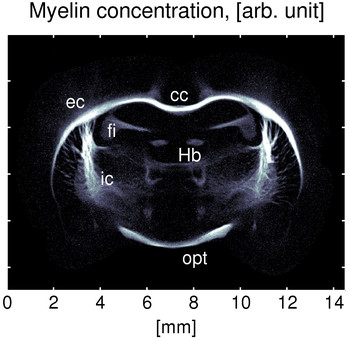 b) The myelin concentration in the rat's brain is seen here, with the highest concentration occurring around the corpus callosum (the bundle of nerve fibres connecting the two hemispheres of the brain) and at the internal and external capsules. The myelin concentration could be determined without having to dissect the brain. (Image: Niels Bohr Institute, Copenhagen)