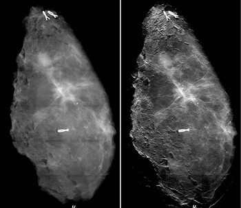 The comparison of x-ray images of breast tissue from a conventional mammography with those from the new mammography procedure showing a clear improvement in image sharpness and, thus, the visibility of the tumour extensions (right). Image: Paul Scherrer Institute/Kantonsspital Baden