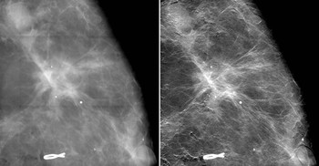 The comparison of x-ray images of breast tissue from a conventional mammography with those from the new mammography procedure showing a clear improvement in image sharpness and, thus, the visibility of the tumour extensions (right). (Detail from the image above) Image: Paul Scherrer Institute/Kantonsspital Baden