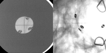 Before every treatment session in OPTIS, two X-ray images are taken on which black, button-like dots can be seen. These are tiny metal plates that are attached to the eye from the back. They help to position the patient's eye, and thereby the tumour, in exactly the same way for each irradiation. The large grey circle on the image to the left is the aperture plate. It shapes the proton beam, causing it to strike only the light-grey area. (Photo: Paul Scherrer Institute)