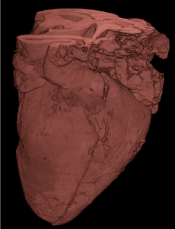 3D rendering of a human fetal heart (15 weeks) acquired with X-ray tomography at 20 keV.